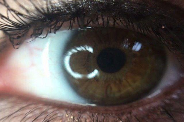 Покраснение глаз может быть симптомом серьезной болезни, - врачи