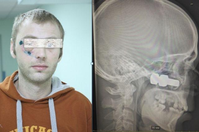В голове молодого мужчины застрял огромный болт.