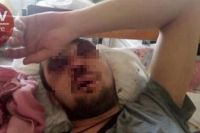 Под Киевом водитель маршрутки за просьбу дать сдачу избил пассажира