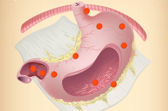 Как работает желудок человека? Инфографика