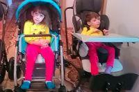 Сиамские близняшки Эвелина (слева) и Виола