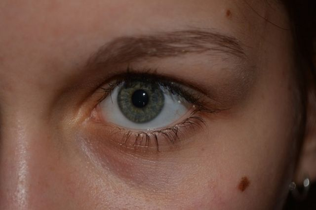 Калининградцы смогут бесплатно продиагностировать кожные новообразования