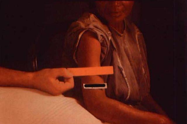 Пациентка, заражённая сифилисом.
