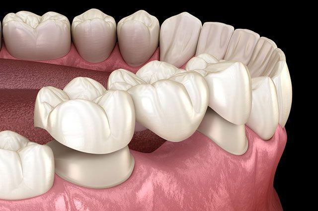 Как правильно ухаживать за зубными коронками?