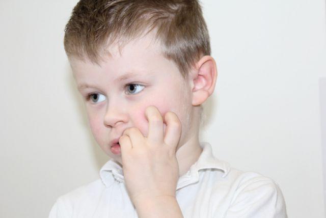 Как отучить ребёнка грызть ногти?