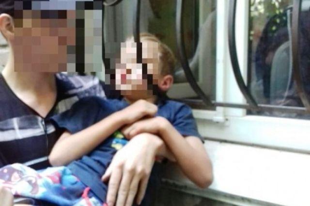 В Кривом Роге ребенок застрял головой в оконной решетке