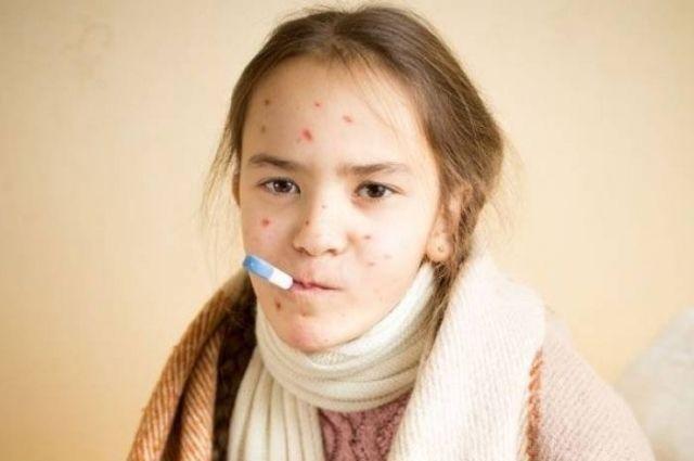 С начала 2019 года в Украине корью заболело почти 57 тысяч человек