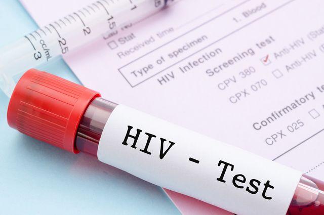 Три теста показали ВИЧ-положительный результат.