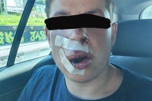 Выбили зубы: в Польше произошло жестокое избиение студента из Украины