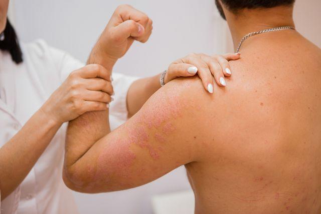 В 70% случаев псориаз проявляется в возрасте до 20 лет.