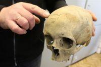 Вскрытие показало, что голова и туловище принадлежат одному человеку.