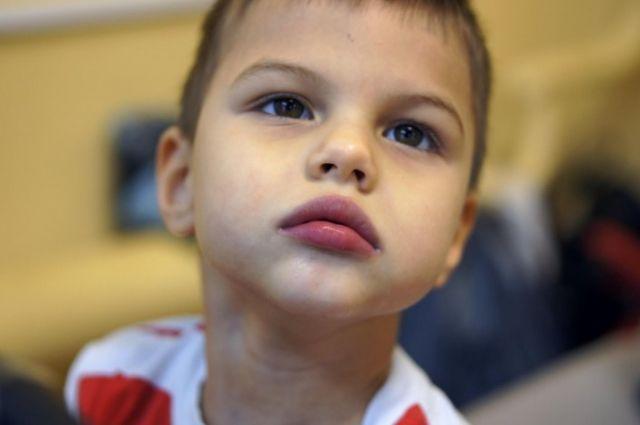 Врачи предполагают, что причина такого состояния – вирусный энцефалит, который в считанные часы лишил ребёнка возможности видеть, двигаться, разговаривать.