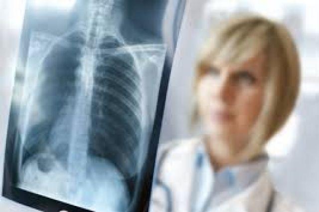 Врачи назвали симптомы рака легких, на которые многие не обращают внимания