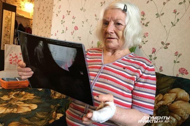 Прошло три недели, а на лице у Лилии Васильевны до сих пор синяки.