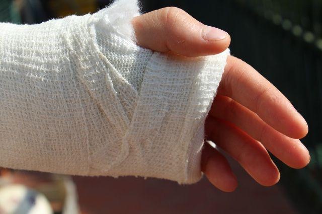 Перелом без смещения: пациенту делается рентген и накладывается гипсовая повязка.