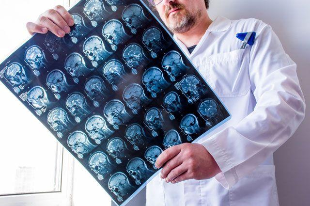 Рассеянный склероз: вылечить нельзя, но можно замедлить прогрессирование заболевания | ЛекОбоз