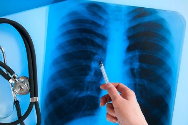 За 2019 год в Украине более 15,5 тысяч человек заболели туберкулезом