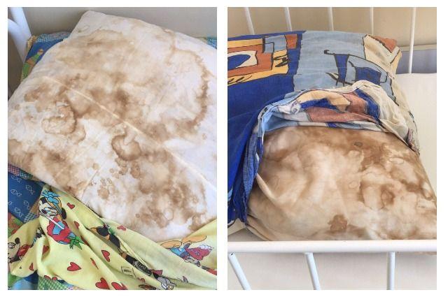 Так выглядели постельные принадлежности в медучреждении в Соликамске.