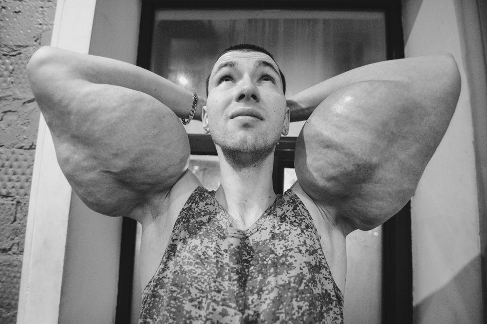 Снимок фотографа Антона Доценко из США. На фото — Кирилл Терешин, получивший прозвище «руки-базуки» из-за инъекций, которые он делал, чтобы получить рельефную мускулатуру. Таким образом, фотограф хотел рассказать об опасности таких методов.