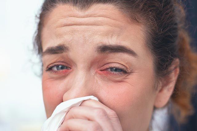 Что такое глазной грипп?