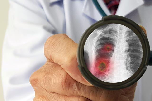 Какой процент смертности при пневмонии