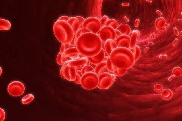 Специалисты назвали симптомы тромбоза: детали