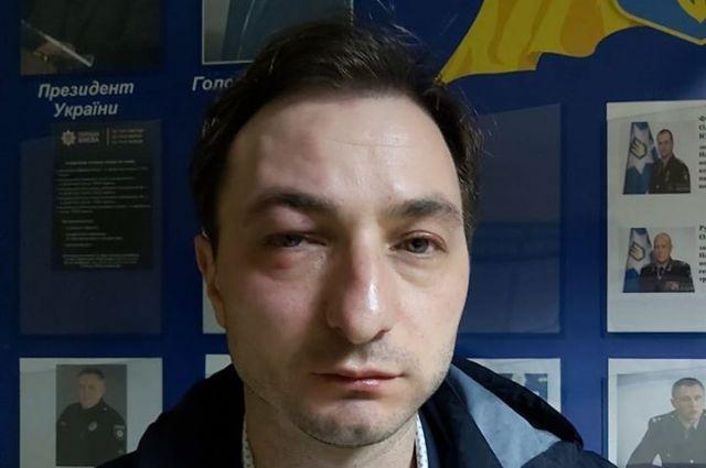 В Киеве избили главврача Национального института рака
