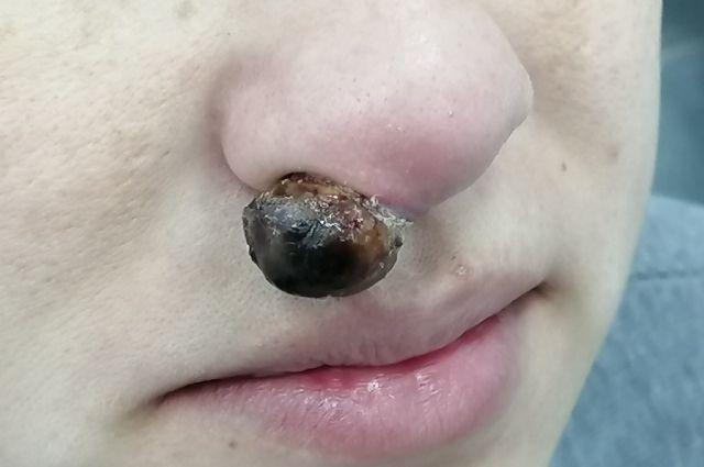 Тюменские врачи удалили беременной опухоль на носу