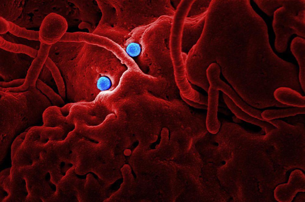 MERS (коронавирус ближневосточного респираторного синдрома). Первые случаи заболевания регистрировались в Саудовской Аравии в начале осени 2012 года, однако ВОЗ фиксировала случаи заражение вплоть до 2019 года. Клиническая картина характерна для острого респираторного вирусного заболевания: первыми симптомами являются лихорадка, кашель, одышка, по мере развития заболевание переходит в форму тяжёлой вирусной пневмонии. Для заболевания характерна высокая смертность — около 35%.