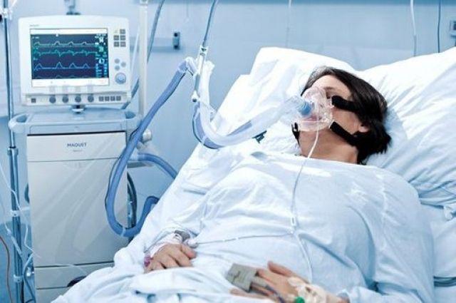 Украина в 2020 году закупила 385 аппаратов искусственной вентиляции легких