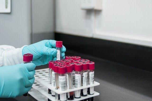 В лабораториях будут исследовать в том числе пробы материала от здоровых жителей региона, которые вернулись из-за границы.