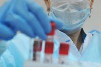 В Донецкой области остановят исследования на ВИЧ ради диагностики COVID-19