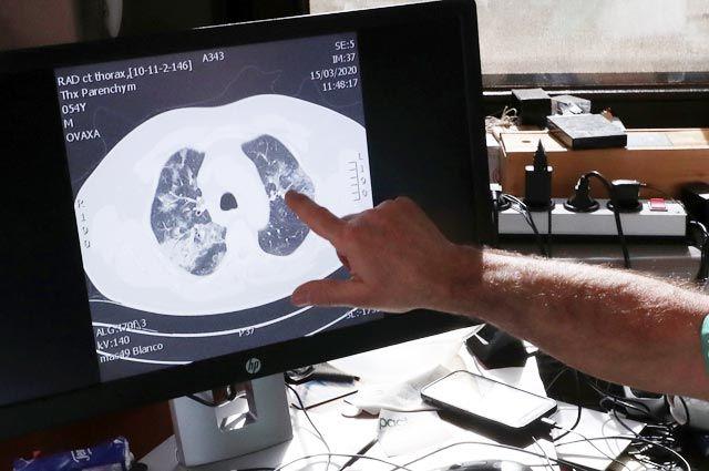 Говорит патологоанатом. Что происходит с органами после заражения COVID-19?