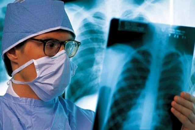 Туберкулёз – основная причина гибели людей, живущих с ВИЧ.