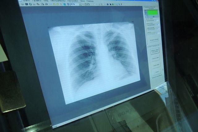 В Сорочинске у больных заболевание коронавирусной инфекцией проходит в тяжелой форме.