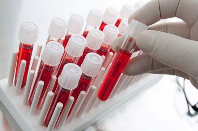 В Житомирской области начнут собирать плазму крови у переболевших COVID-19