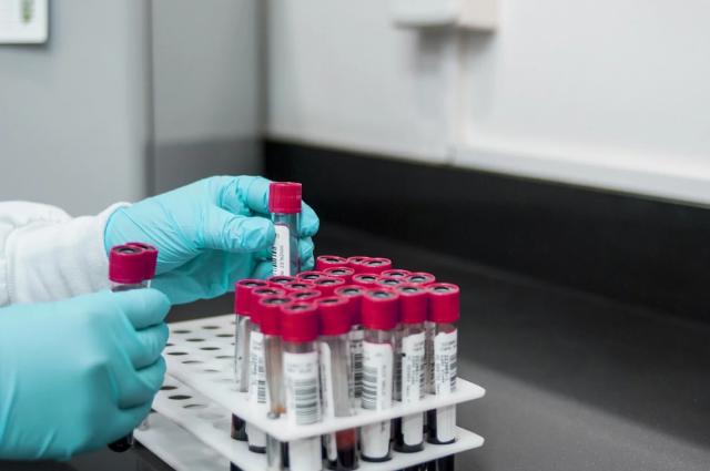 В Тюменской области семь доноров сдали плазму для лечения коронавируса