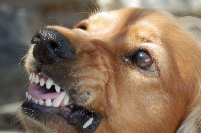 Мать травмированного мальчика собирается сделать всё возможное, чтобы собаку забрали из двора.
