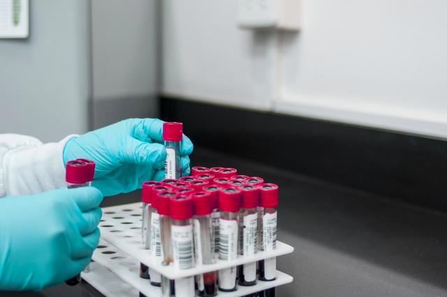 27 новых случаев заражения коронавирусом зарегистрировали в Удмуртии