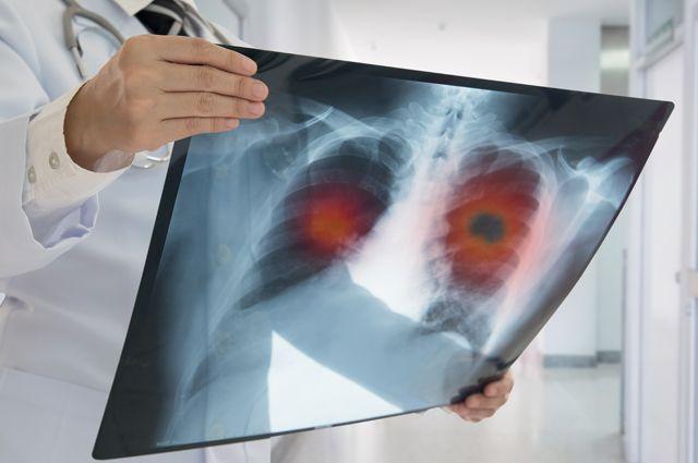 Пять хворей современности. Самые популярные заболевания и их симптомы