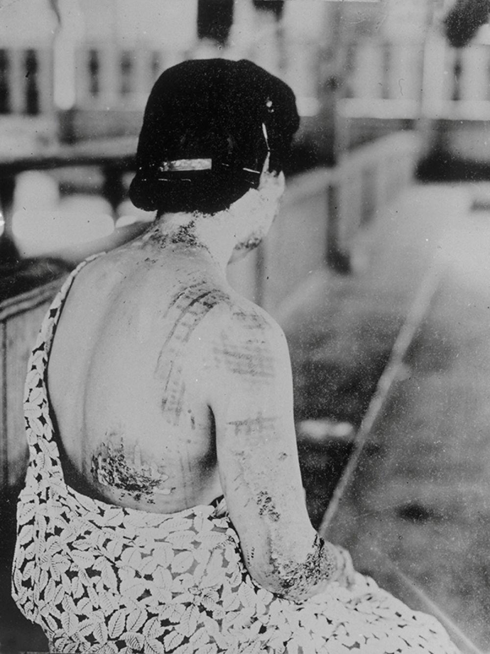 Женщина, проходящая лечение, показывает свои раны, оставшиеся после взрыва атомной бомбой в Нагасаки (снимок сделан 17 марта 1948 года).