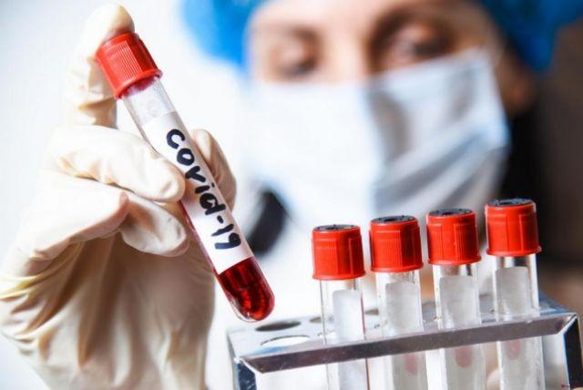 Они изучат как сформировался у них иммунитет к инфекции и будет ли сохраняться.