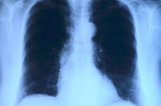 В Оренбуржье в тяжелом состоянии находятся 68 пациентов с коронавирусом.