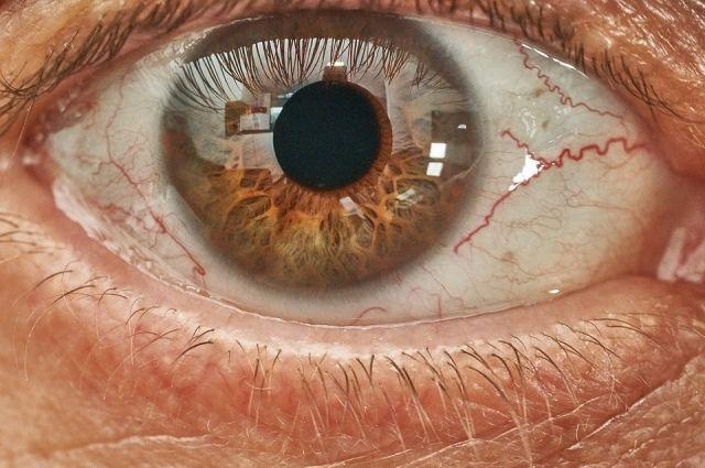 Тюменка получила ожог глаза, опрокинув в магазине чистящее средство