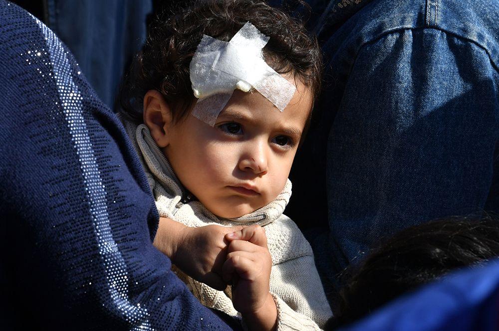 Ребенок, пострадавший в результате обстрела города Гянджа.