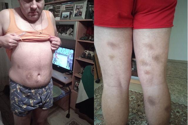 38-летнего инвалида избили до состояния обморока.