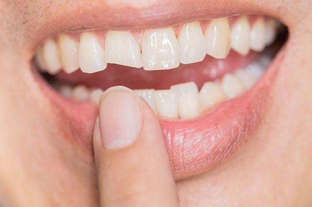 Чем опасны сколы на зубах и что с ними делать? Советы стоматолога