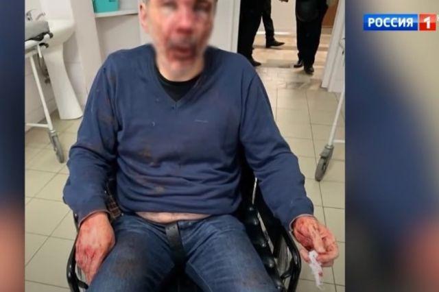 Избитого педагога сфотографировали в приёмном покое больницы.