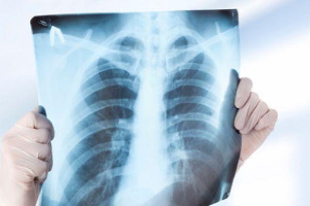 Ученые объяснили, почему рак легких может развиться у некурящих