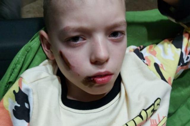 У ребёнка остались следы укусов на лице.